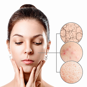 Skin Problems Reduction